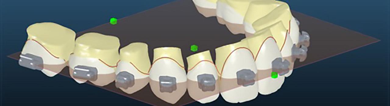 Ortodoncia Madrid - Curso Sistema Insignia