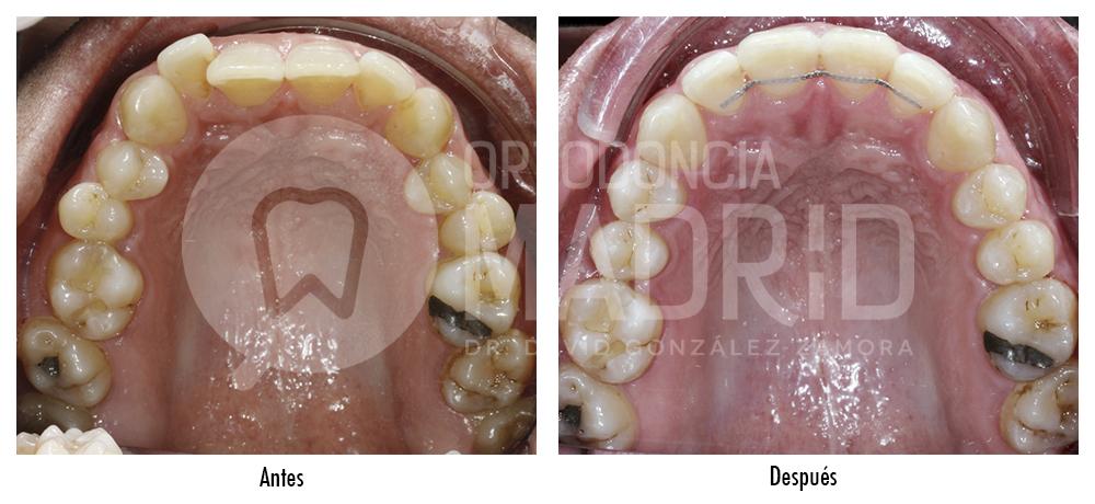 Ortodoncia Madrid - Sobremordida