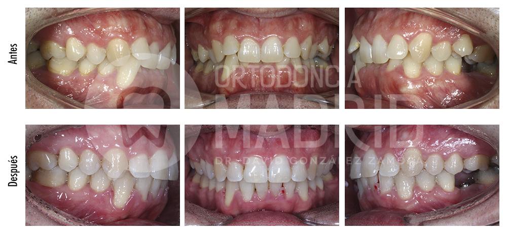 Microimplantes en ortodoncia