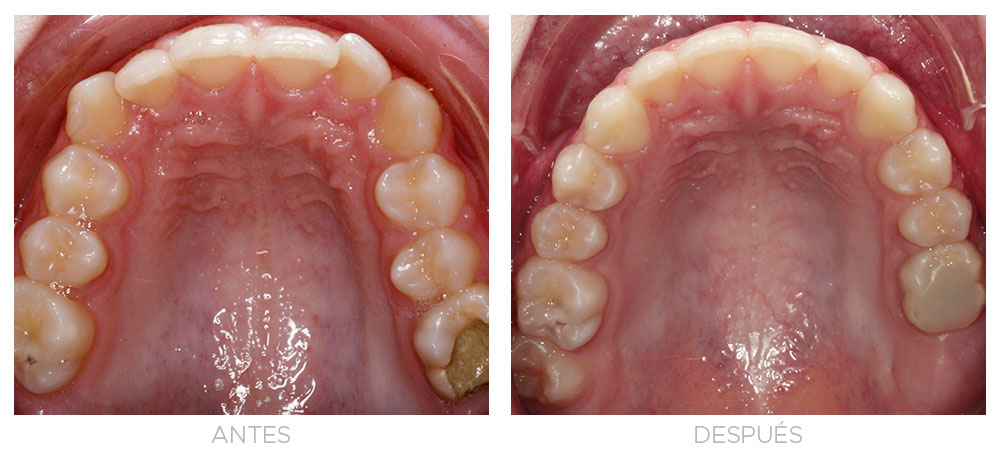 ortodoncia-madrid-clase-II-01-intraoral-sup