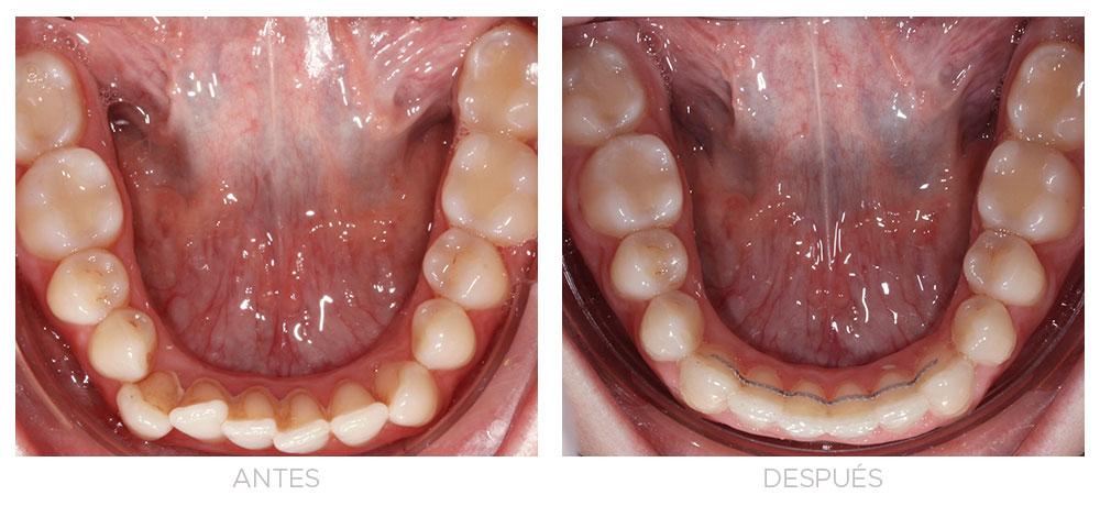 ortodoncia-madrid-cirugia-clase-III-01-intraoral-inf