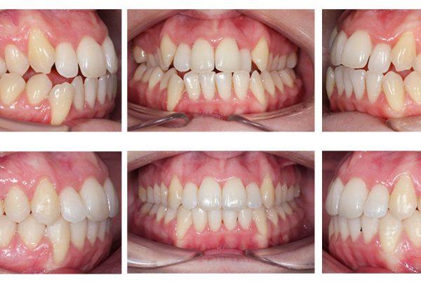 ortodoncia-madrid-cirugia-clase-III-01-intraorales