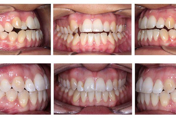 ortodoncia-madrid-cirugia-clase-III-02