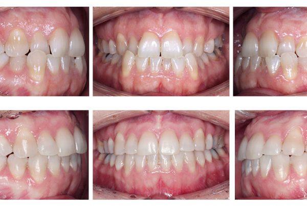 ortodoncia-madrid-clase-III-03-intraorales