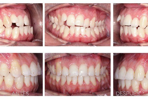ortodoncia-madrid-cirugia-ortognatica-intraorales2