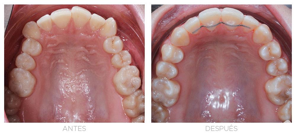 ortodoncia-madrid-clase-II-completa-intraorales-sup
