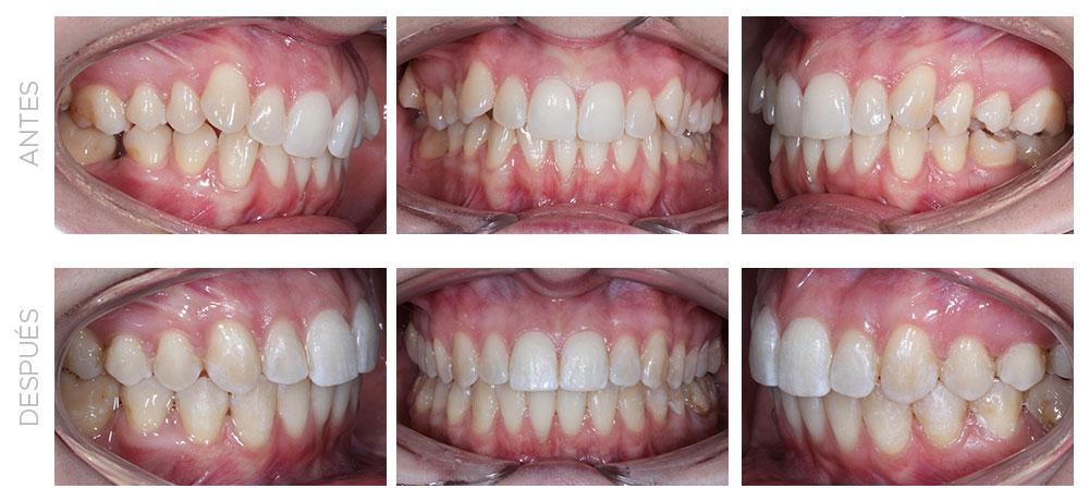 ortodoncia-madrid-clase-II-completa-intraorales
