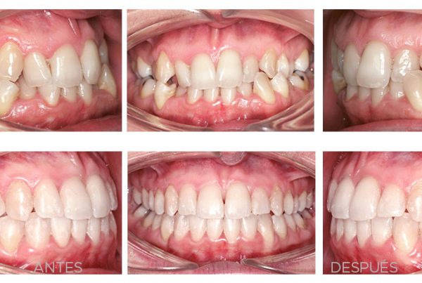 ortodoncia-madrid-mordida-cruzada-01-intraoral