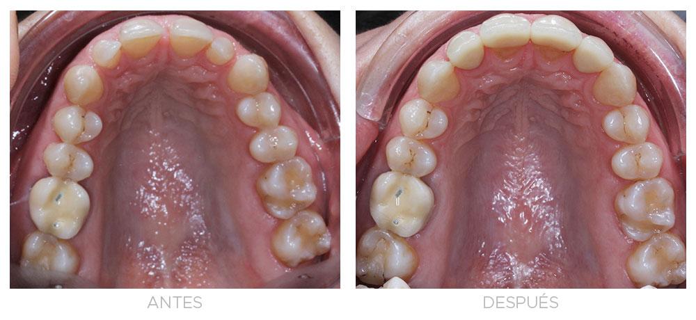 ortodoncia-madrid-ortodoncia-carillas-intraoral-superior