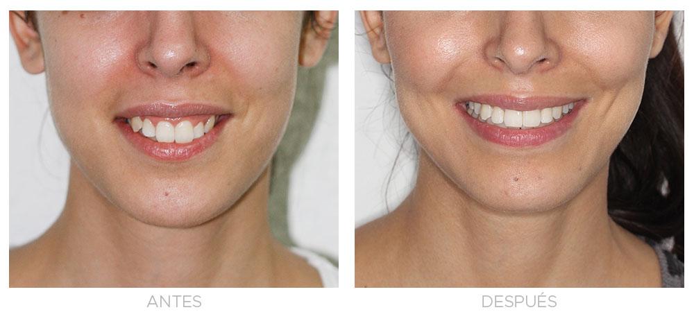 ortodoncia-madrid-sonrisa-gingival-extraorales