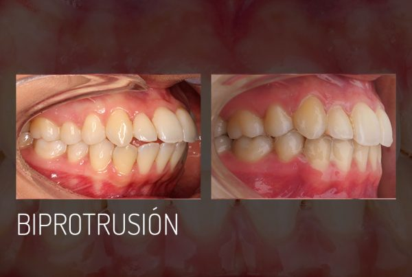 biprotrusion